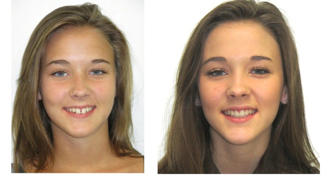 Braces- before and after