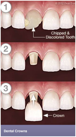 Dental Crowns – Perla Dental