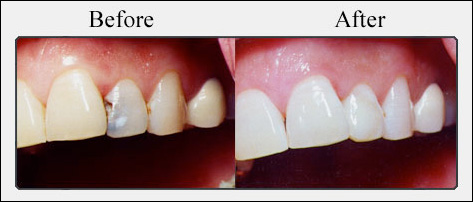Tooth Colored Fillings - Perla Dental