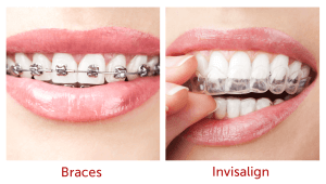 comparison Braces to invisalign